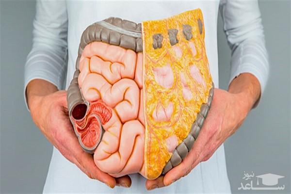 روش های پاکسازی روده برای لاغری و رفع یبوست