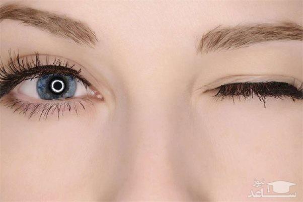 پرش پلک چشم چه زمانی خطرناک است؟