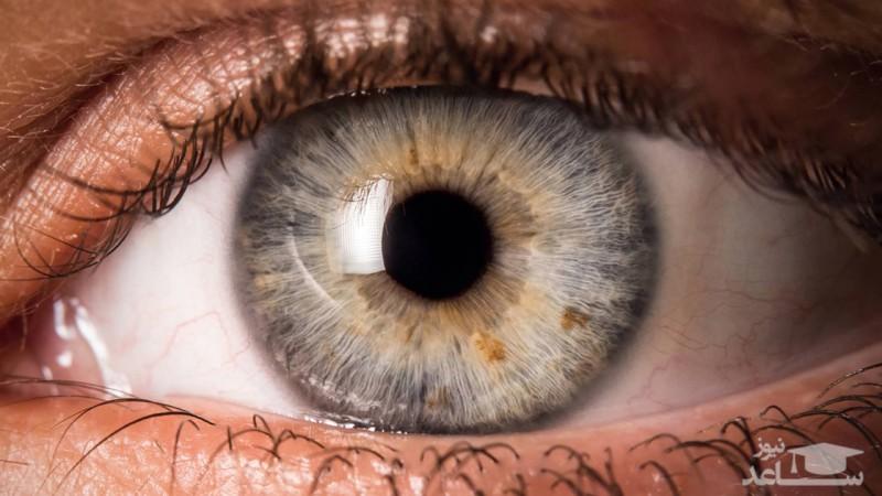 وجود لکه خونی و یا قرمزی در چشم نشان دهنده کدام بیماری است و راه درمان آن چیست؟