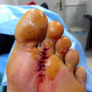 درمان خانگی میخچه پا بدون جراحی