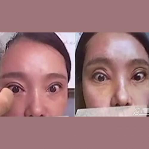 عاقبت عجیب زن جوان که جراحی زیبایی پلک انجام داد!