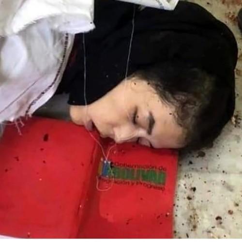 عکس 16+ / حمله وحشتناک داعش به دانشگاه کابل
