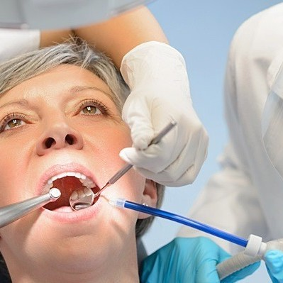 انواع مختلف شکستگی دندان کدامند؟
