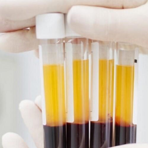 بهبودیافتگان کرونا با اهدای پلاسما به یاری دیگر بیماران بشتابند