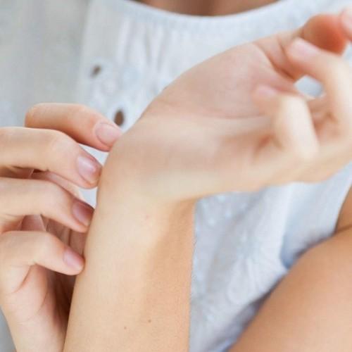 درمان خارش شدید در بارداری