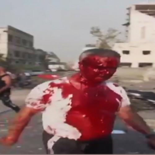 فیلمی دلخراش از زخمیهای انفجار وحشتناک بندر بیروت