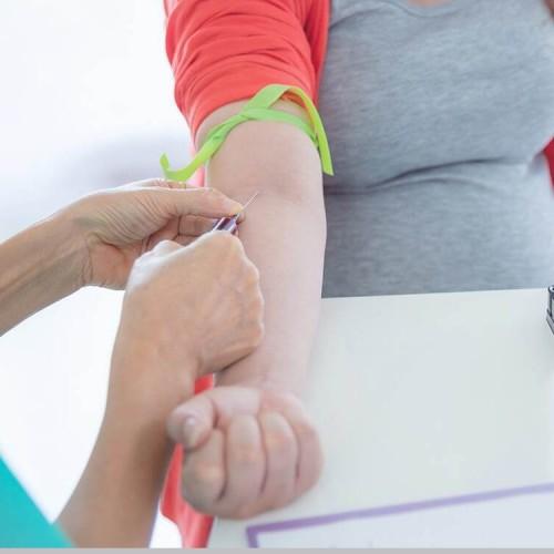 همه چیز درباره آزمایش NIPT در بارداری