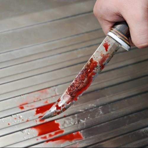 حمله با چاقو به چشمان یک پزشک در بندرعباس
