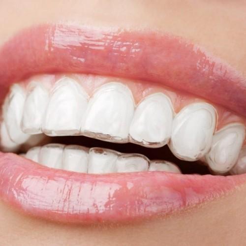خوراکی های مفید برای لثه و دهان