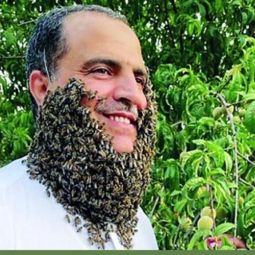 رکورد شکنی مرد عرب  با تحمل ۲۴۰ هزار نيش