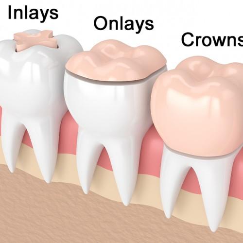 ترمیم دندان به روش اینلی و آنلی