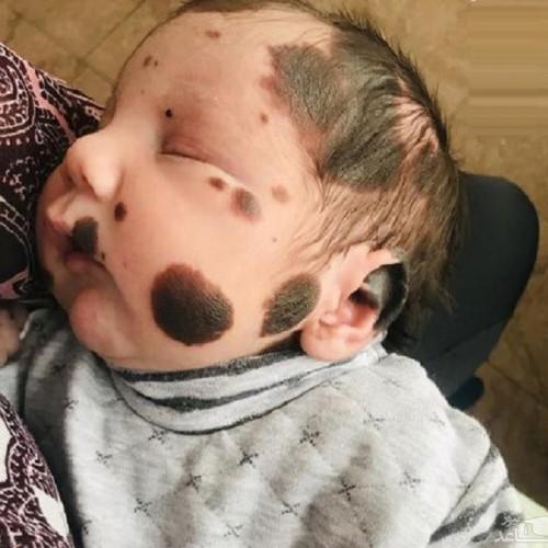 (تصاویر) نوزادی شبیه خرس پاندا!