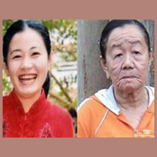 زن 28 ساله ای که پس از زایمان ناگهان چهره اش 70 ساله شد!