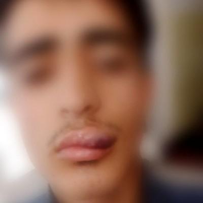 ضربوشتم دانشآموز زنجانی توسط معلم ورزش