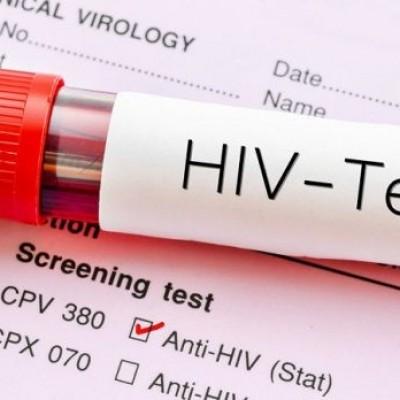 ایدز چه مدت بعد از رابطه جنسی قابل تشخیص است؟