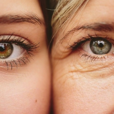 پیری زودرس پوست چیست ؟