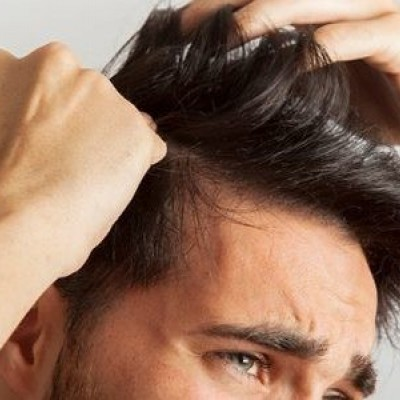 دیدن روییدن مو روی پیشانی در خواب چه تعبیری دارد؟ /  تعبیر خواب پیشانی