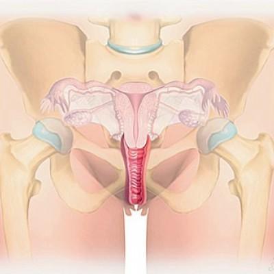 انواع روش های موثر تنگ کردن واژن