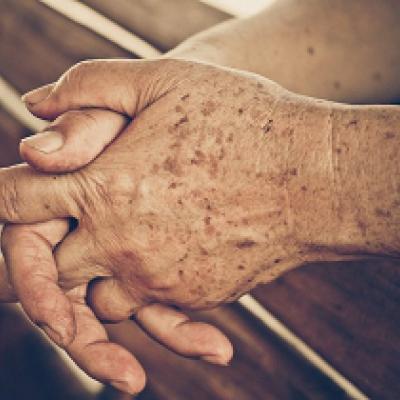 دلایل ایجاد لکههای قهوهای سطح پوست